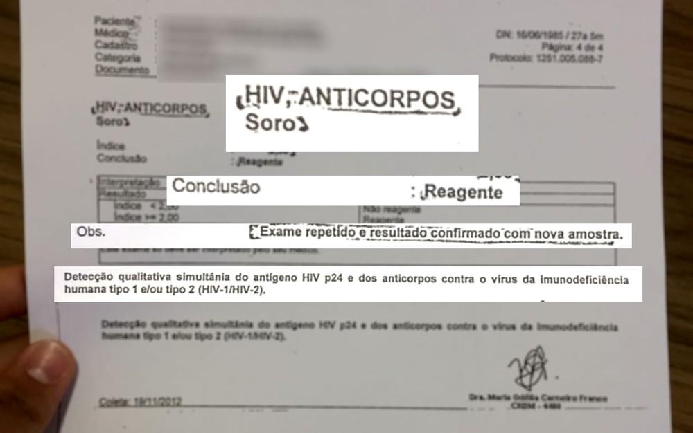 Resultado de exame hiv nao reagente
